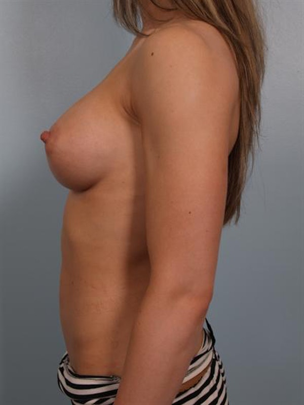 Breast Augmentation Gallery - Patient 1310245 - Image 4