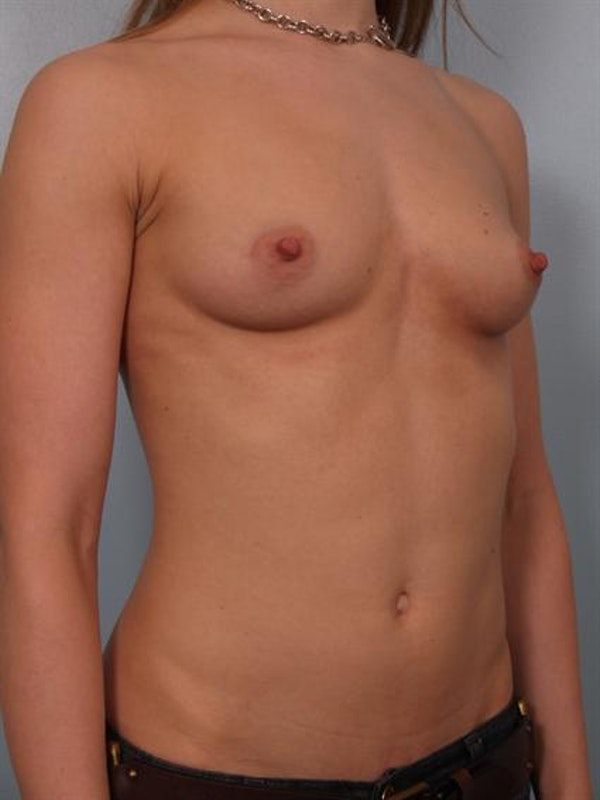 Breast Augmentation Gallery - Patient 1310245 - Image 5