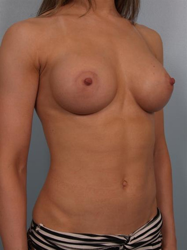 Breast Augmentation Gallery - Patient 1310245 - Image 6