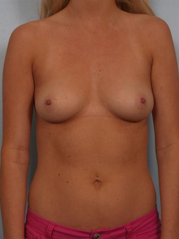 Breast Augmentation Gallery - Patient 1310246 - Image 1