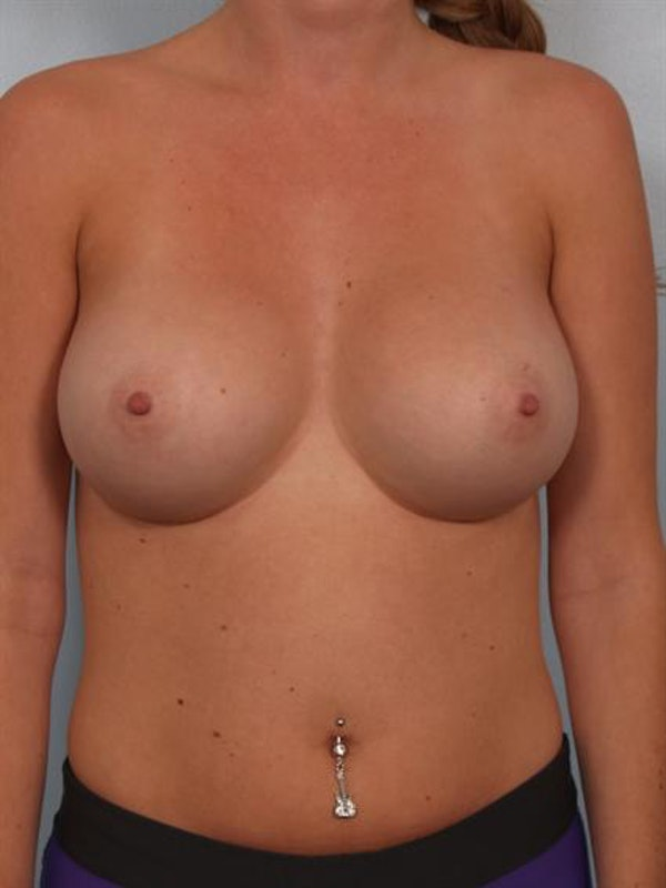 Breast Augmentation Gallery - Patient 1310246 - Image 2