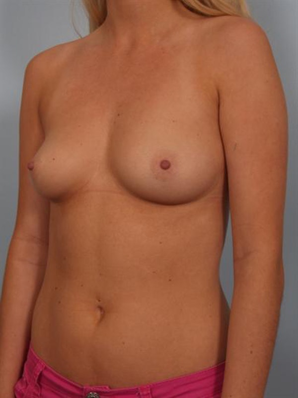 Breast Augmentation Gallery - Patient 1310246 - Image 3