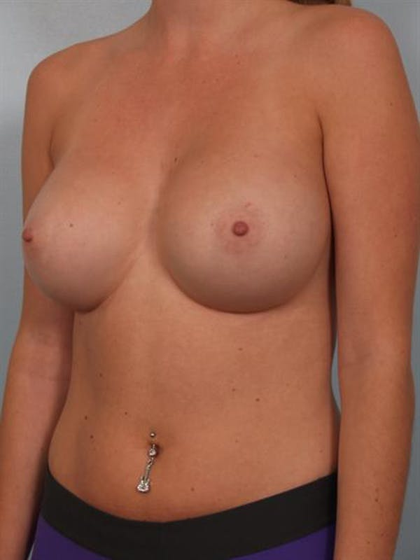 Breast Augmentation Gallery - Patient 1310246 - Image 4