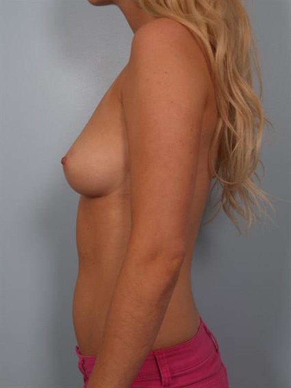 Breast Augmentation Gallery - Patient 1310246 - Image 5