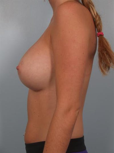 Breast Augmentation Gallery - Patient 1310246 - Image 6