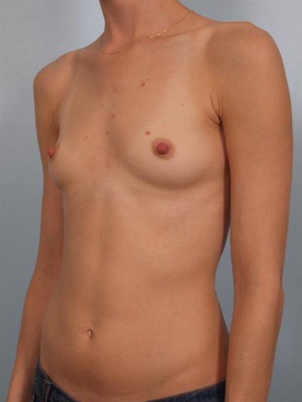 Breast Augmentation Gallery - Patient 1310247 - Image 1