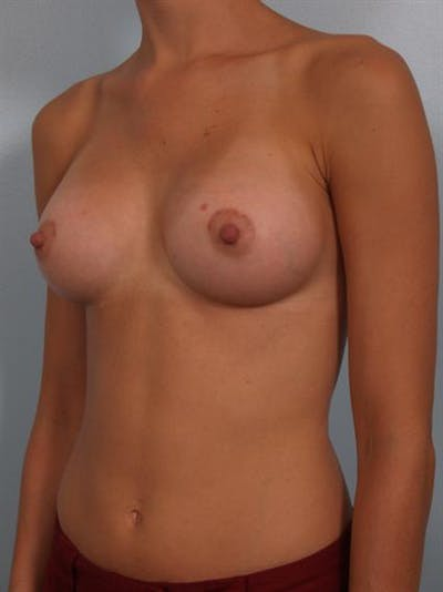 Breast Augmentation Gallery - Patient 1310247 - Image 2