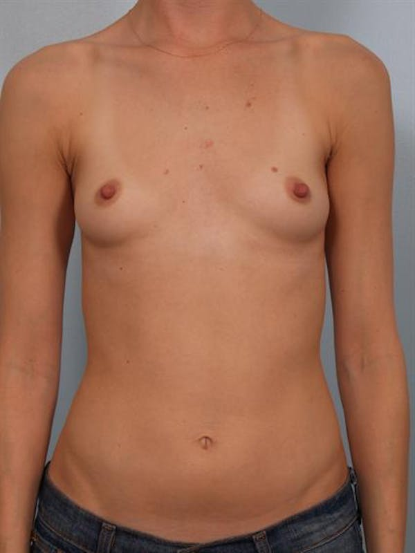 Breast Augmentation Gallery - Patient 1310247 - Image 3