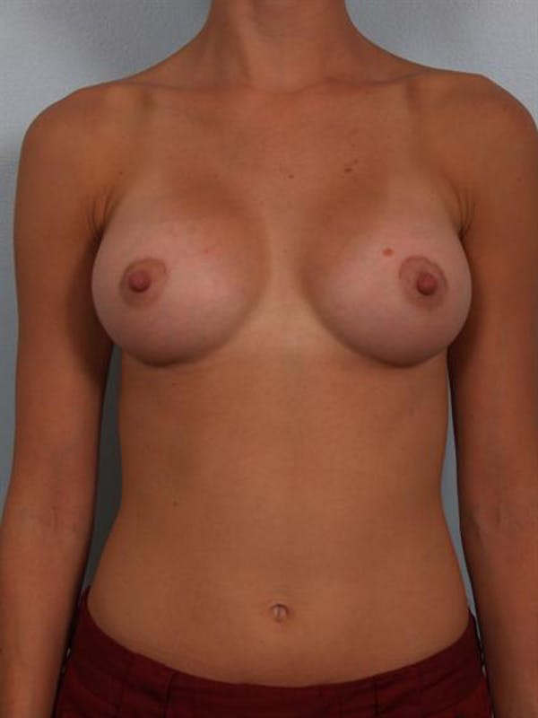 Breast Augmentation Gallery - Patient 1310247 - Image 4