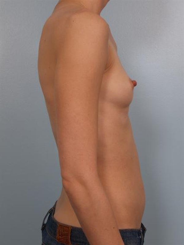 Breast Augmentation Gallery - Patient 1310247 - Image 5