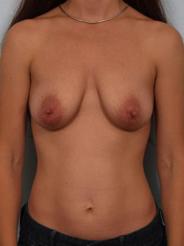 Breast Augmentation Gallery - Patient 1310250 - Image 1