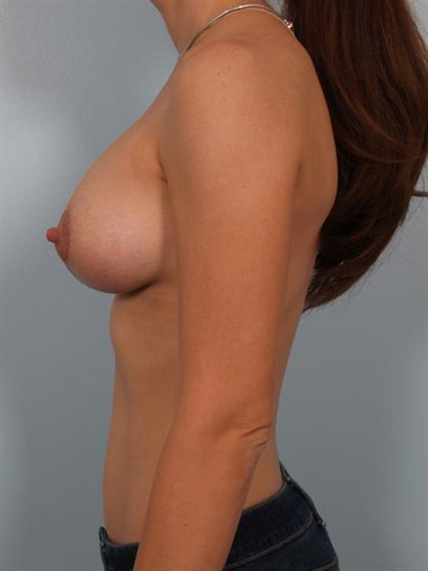 Breast Augmentation Gallery - Patient 1310250 - Image 4