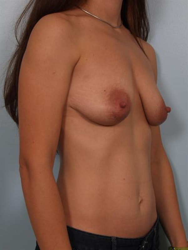 Breast Augmentation Gallery - Patient 1310250 - Image 5