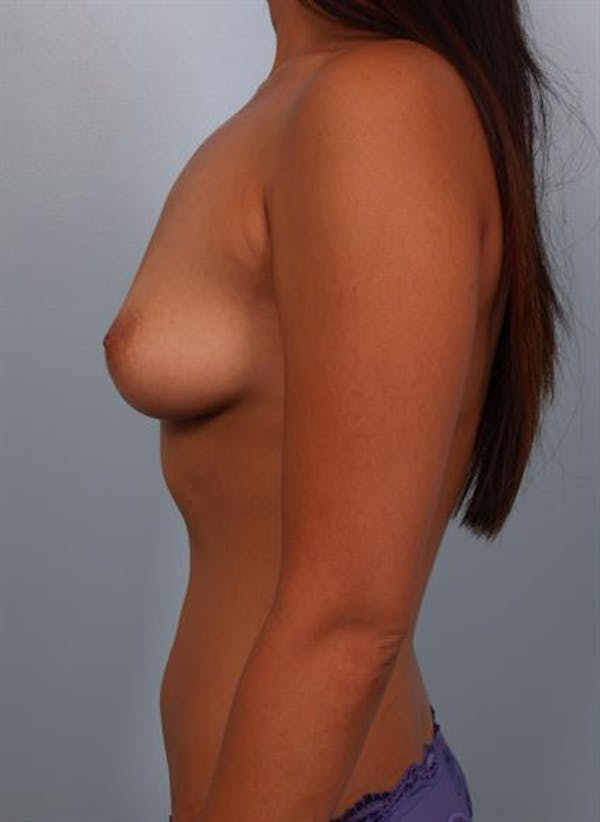 Breast Augmentation Gallery - Patient 1310251 - Image 1