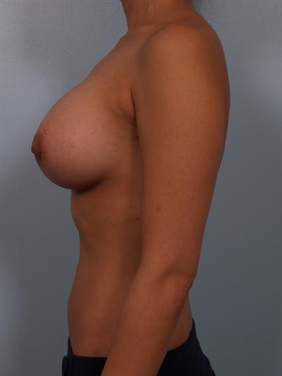 Breast Augmentation Gallery - Patient 1310251 - Image 2