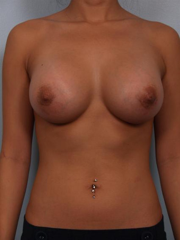 Breast Augmentation Gallery - Patient 1310251 - Image 4