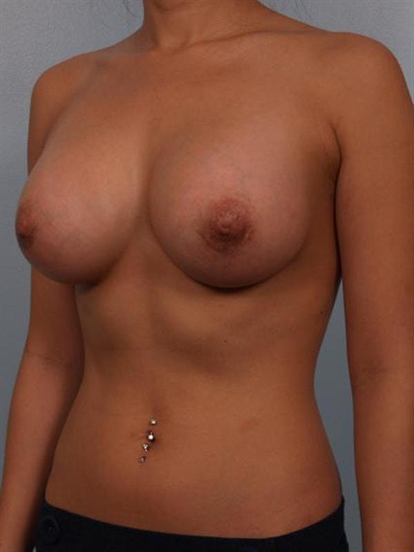 Breast Augmentation Gallery - Patient 1310251 - Image 6
