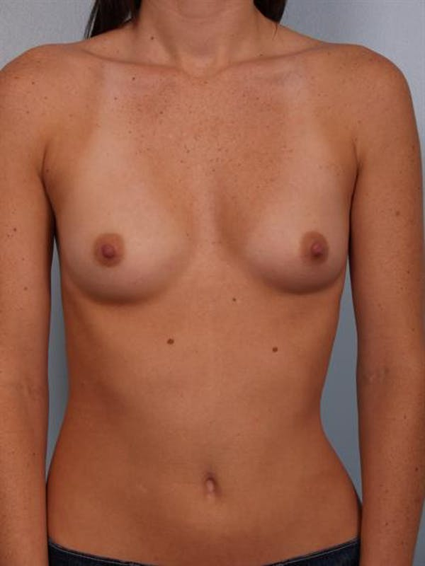 Breast Augmentation Gallery - Patient 1310253 - Image 1