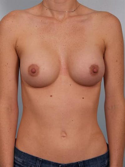 Breast Augmentation Gallery - Patient 1310253 - Image 2