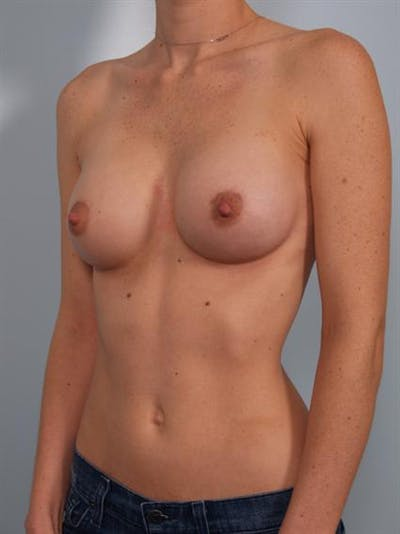 Breast Augmentation Gallery - Patient 1310253 - Image 4