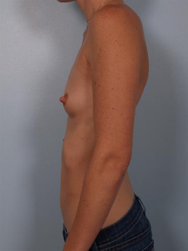 Breast Augmentation Gallery - Patient 1310253 - Image 5