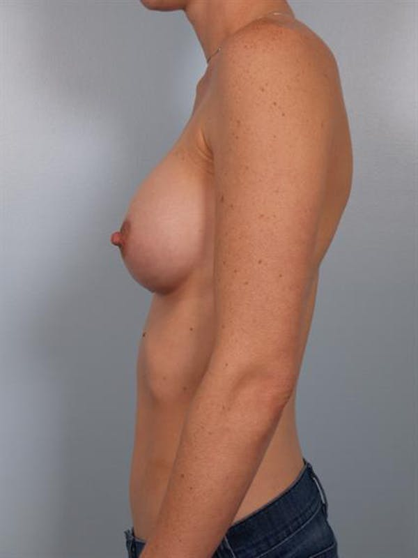 Breast Augmentation Gallery - Patient 1310253 - Image 6