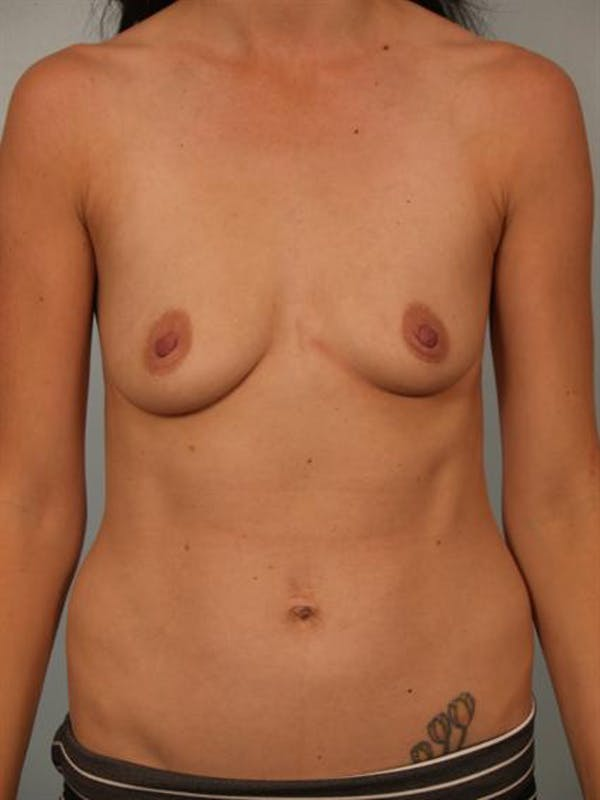 Breast Augmentation Gallery - Patient 1310254 - Image 1