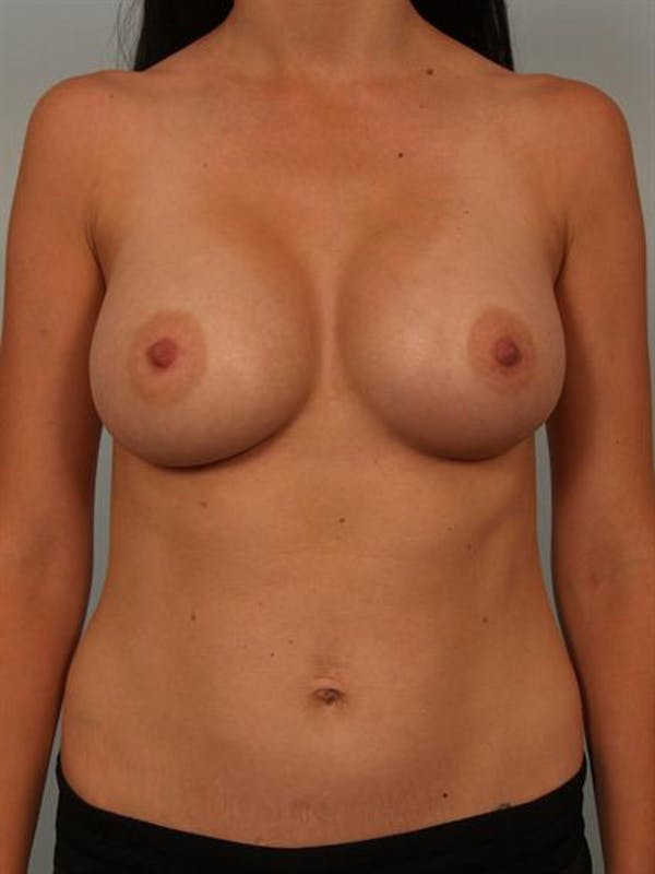 Breast Augmentation Gallery - Patient 1310254 - Image 2