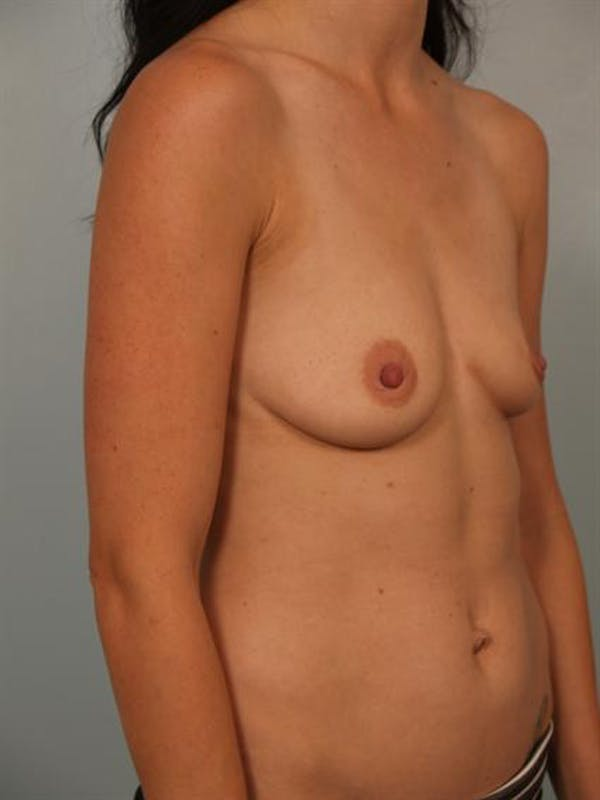 Breast Augmentation Gallery - Patient 1310254 - Image 3
