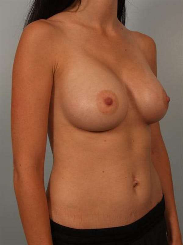Breast Augmentation Gallery - Patient 1310254 - Image 4