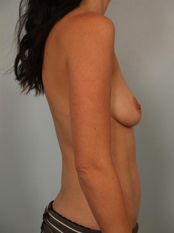 Breast Augmentation Gallery - Patient 1310254 - Image 5