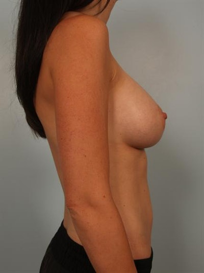 Breast Augmentation Gallery - Patient 1310254 - Image 6