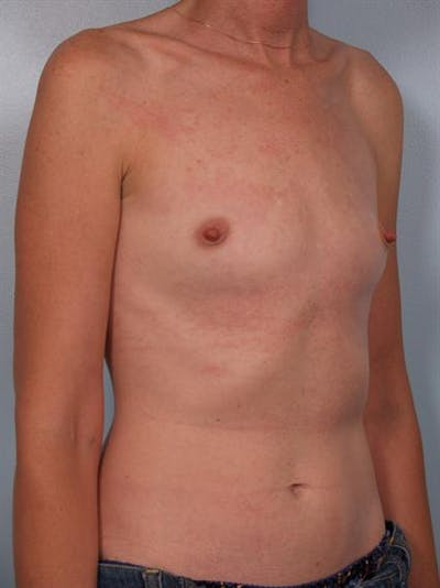 Breast Augmentation Gallery - Patient 1310257 - Image 1
