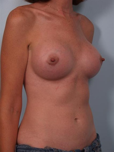 Breast Augmentation Gallery - Patient 1310257 - Image 2