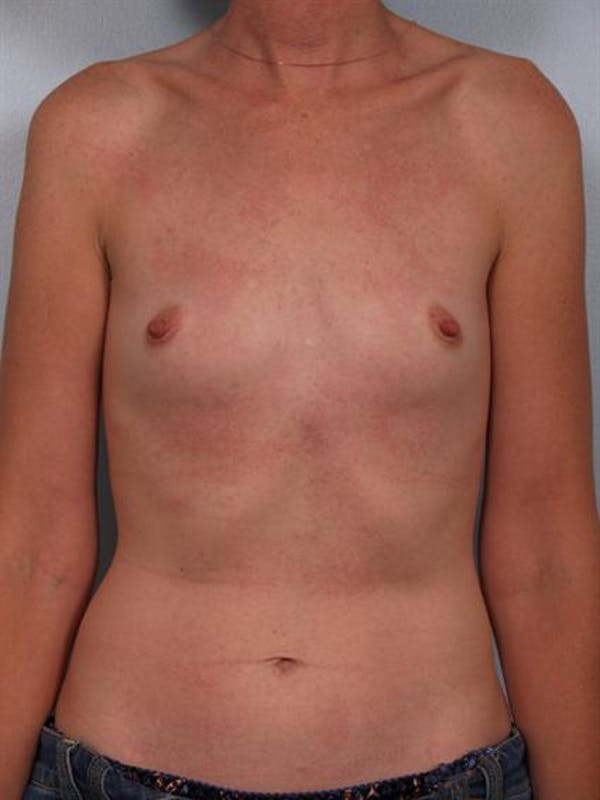 Breast Augmentation Gallery - Patient 1310257 - Image 3