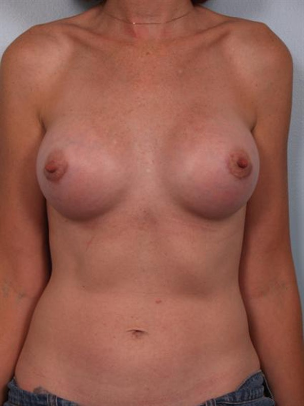 Breast Augmentation Gallery - Patient 1310257 - Image 4