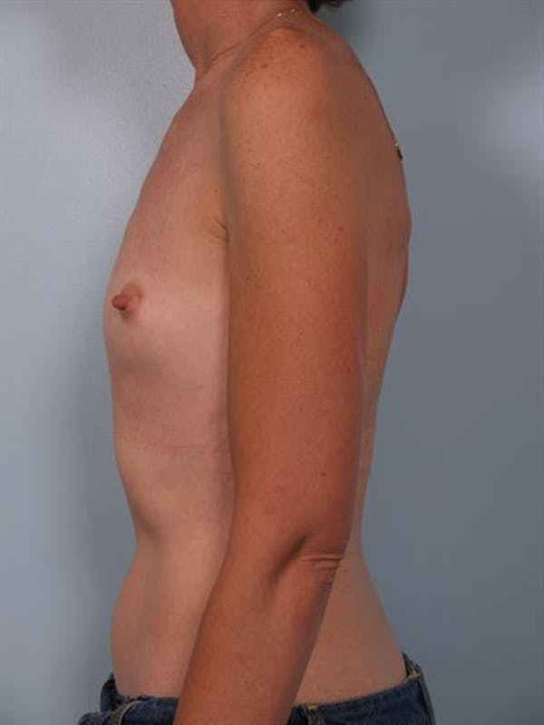Breast Augmentation Gallery - Patient 1310257 - Image 5
