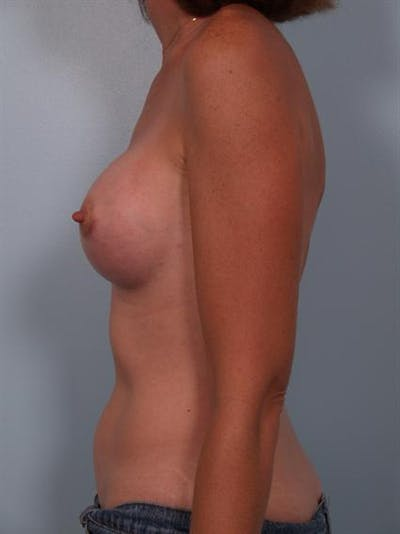 Breast Augmentation Gallery - Patient 1310257 - Image 6