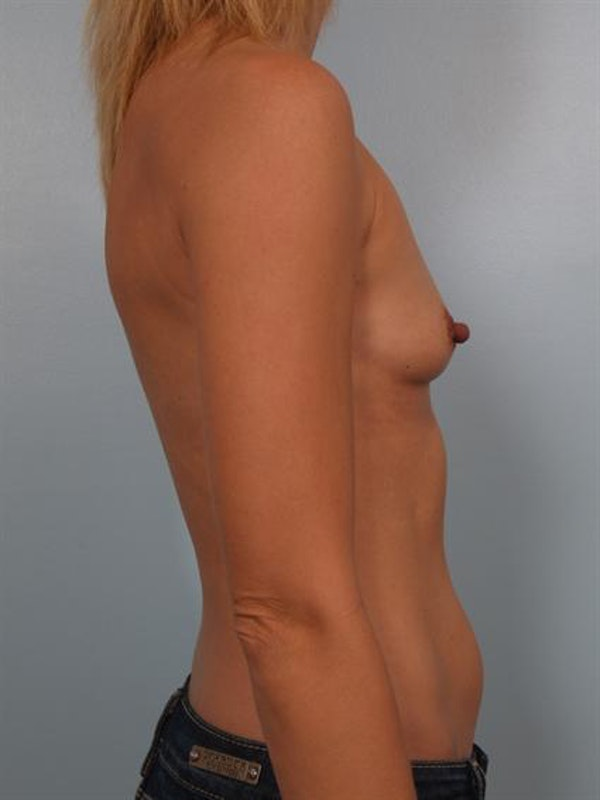 Breast Augmentation Gallery - Patient 1310258 - Image 1