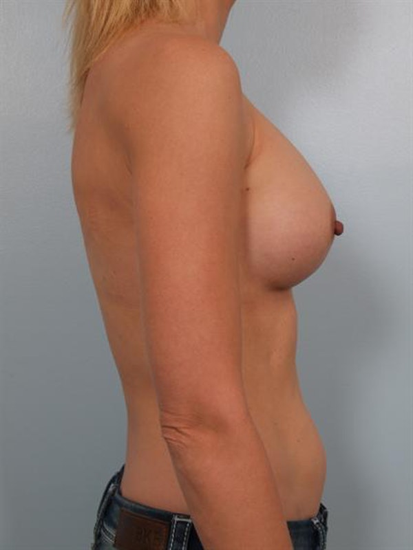 Breast Augmentation Gallery - Patient 1310258 - Image 2