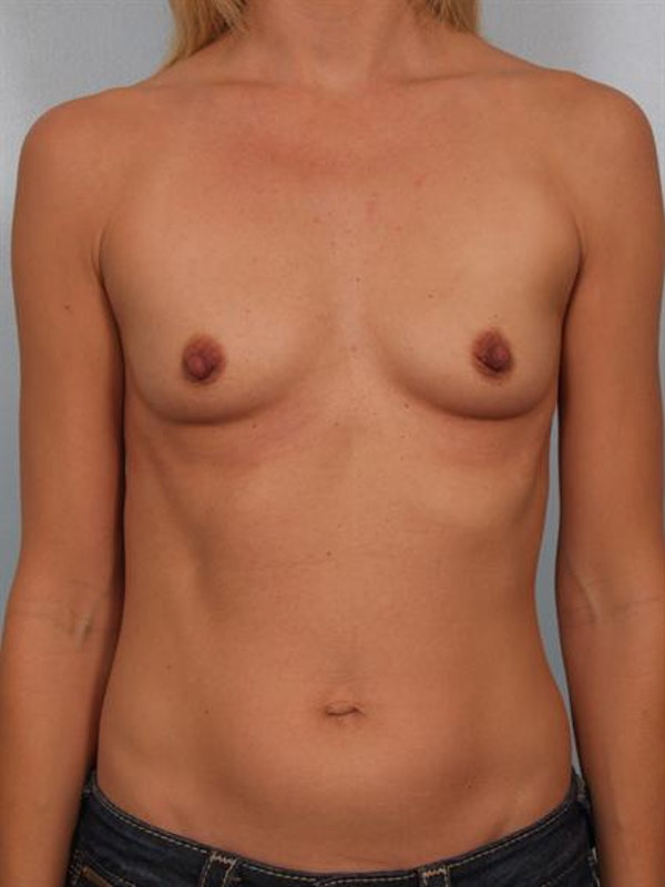 Breast Augmentation Gallery - Patient 1310258 - Image 3