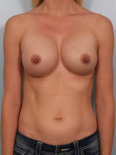 Breast Augmentation Gallery - Patient 1310258 - Image 4