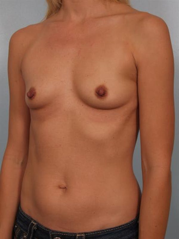 Breast Augmentation Gallery - Patient 1310258 - Image 5