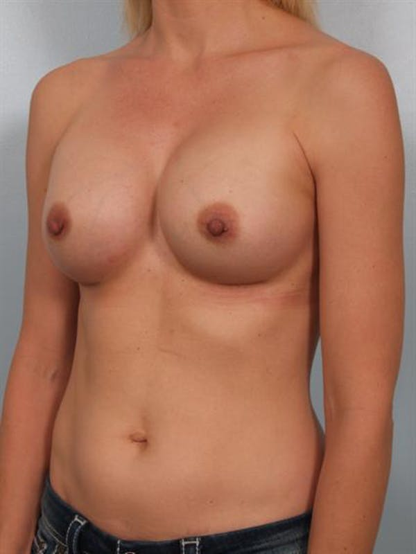 Breast Augmentation Gallery - Patient 1310258 - Image 6