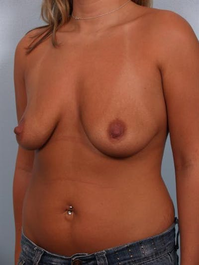 Breast Augmentation Gallery - Patient 1310260 - Image 1