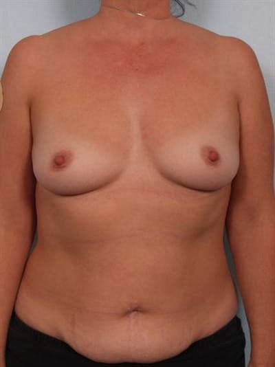 Breast Augmentation Gallery - Patient 1310262 - Image 1