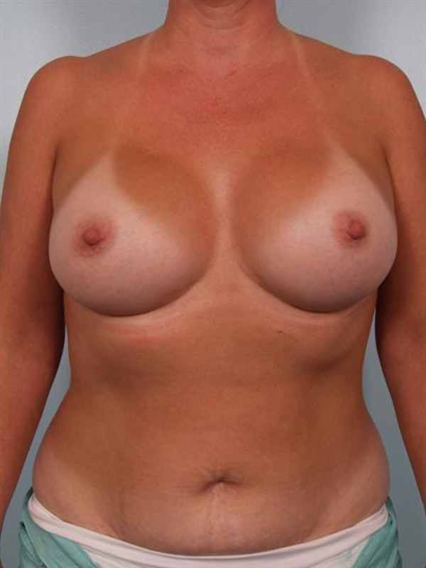 Breast Augmentation Gallery - Patient 1310262 - Image 2