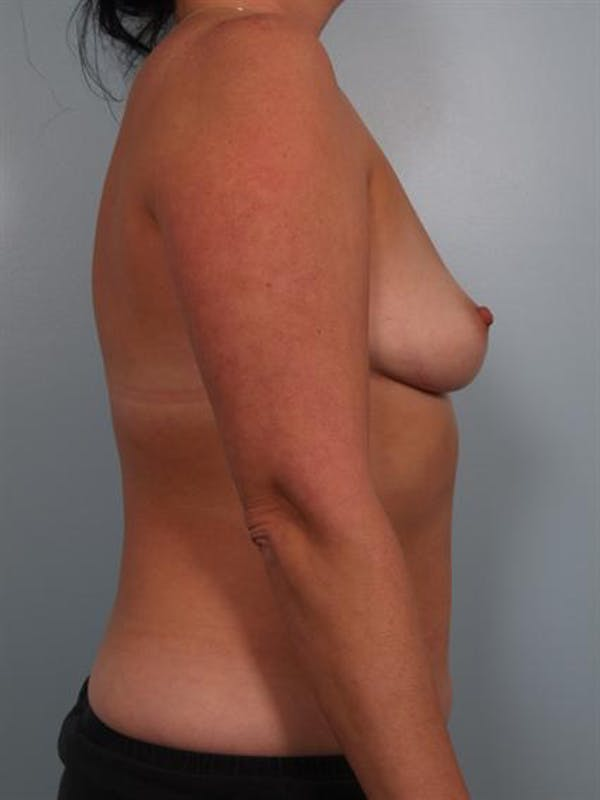 Breast Augmentation Gallery - Patient 1310262 - Image 3