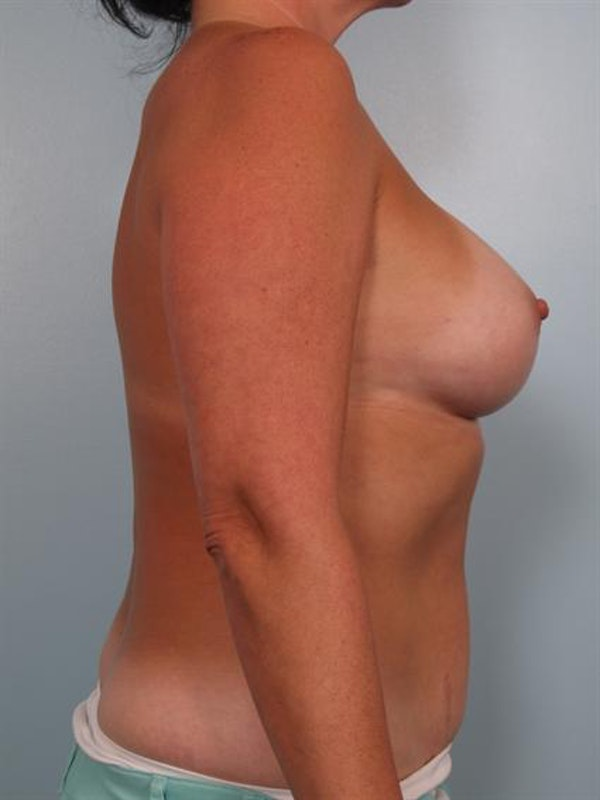 Breast Augmentation Gallery - Patient 1310262 - Image 4
