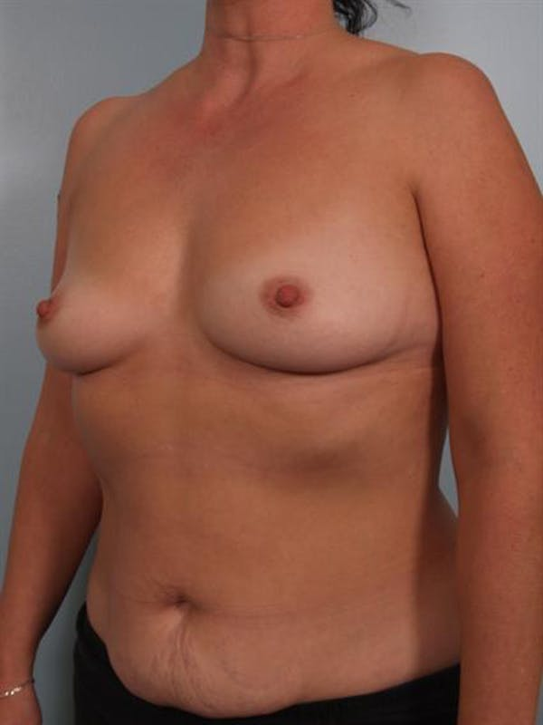 Breast Augmentation Gallery - Patient 1310262 - Image 5